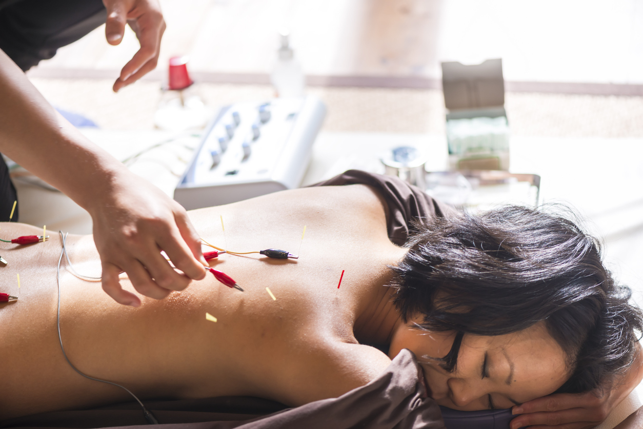 Young woman, Japanese ethnicity, at the acupuncture treatment. Hands of acupuncturists inserting needles in her back with electrical stimulation. She is lying, at bright window.